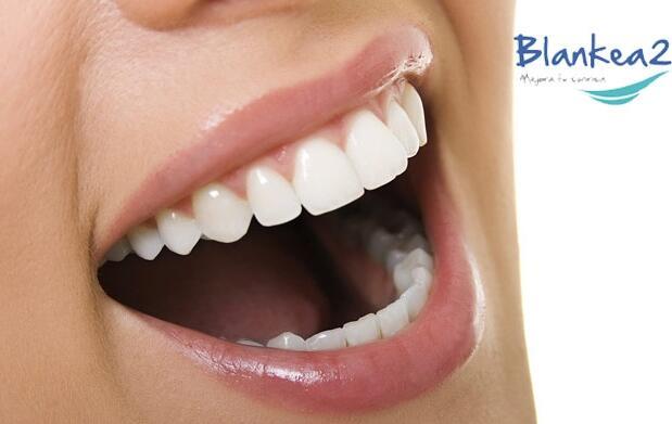 Blanqueamiento dental Led por 29 €