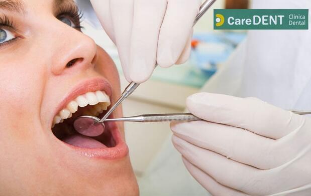 Revisión completa y limpieza dental 15€
