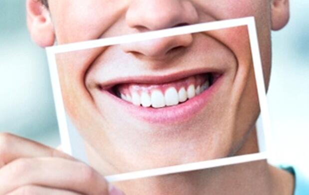 Tratamiento de blanqueamiento dental 79€