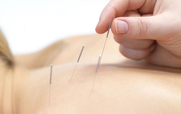 3 sesiones de acupuntura por 29€