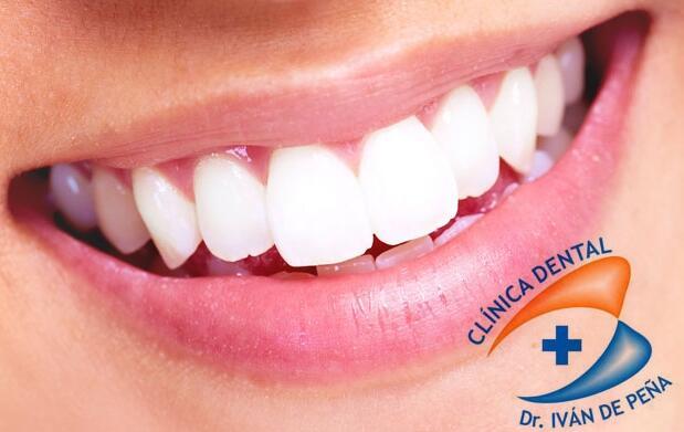 Limpieza dental y revisión por 9€