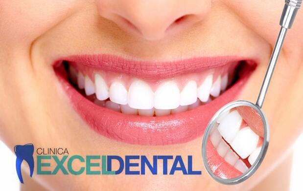 Limpieza dental ultrasonidos 9,90€