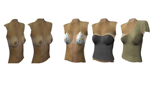 Simulación de aumento mamario 149€