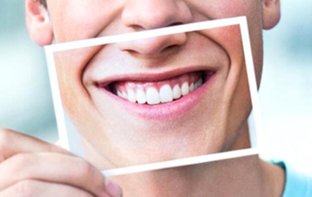 Blanqueamiento dental luz pulsada 69€