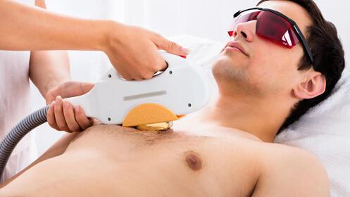 Tu depilación láser hasta un 71% más barata