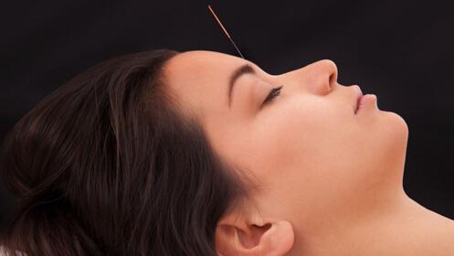 Sesión de acupuntura/osteopatía con un 45% de descuento