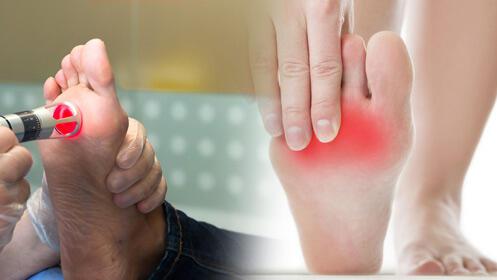 Terapia de láser para cuidar tus pies 18,90€