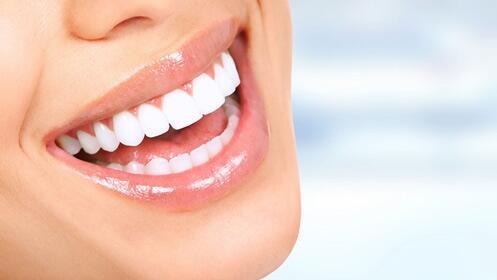 -69% implante dental de titanio, oferta por 249€