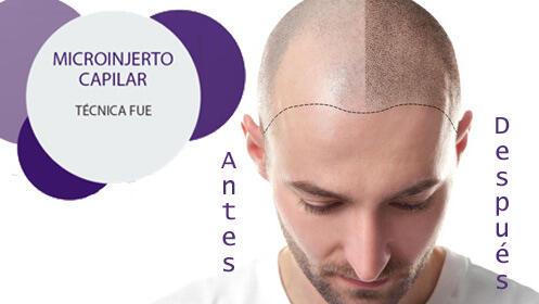 Microinjerto capilar ¡todo el proceso en Valladolid!