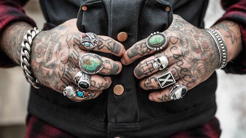 Eliminación de tatuajes con tecnología láser