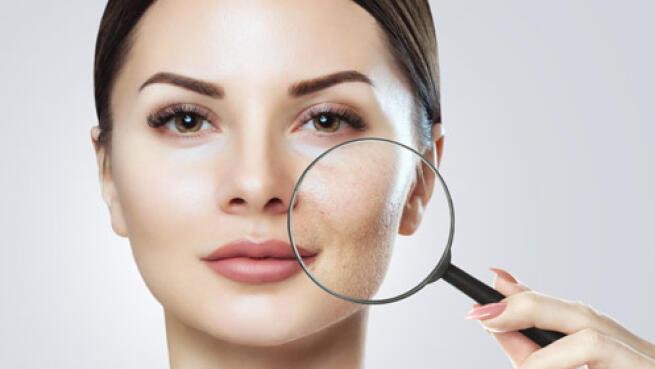 Mejora el aspecto de tu piel: rostro sin acné