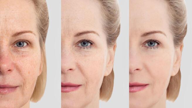 Lifting facial sin cirugía con radiofrecuencia en Sapphira Privé